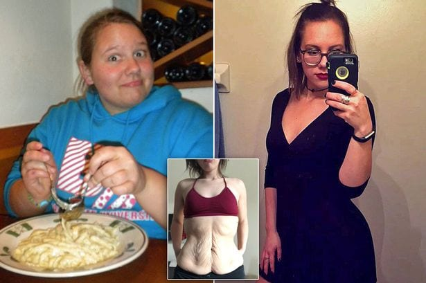 How a heartbreak helped an Obese woman lose 63kg (photos)