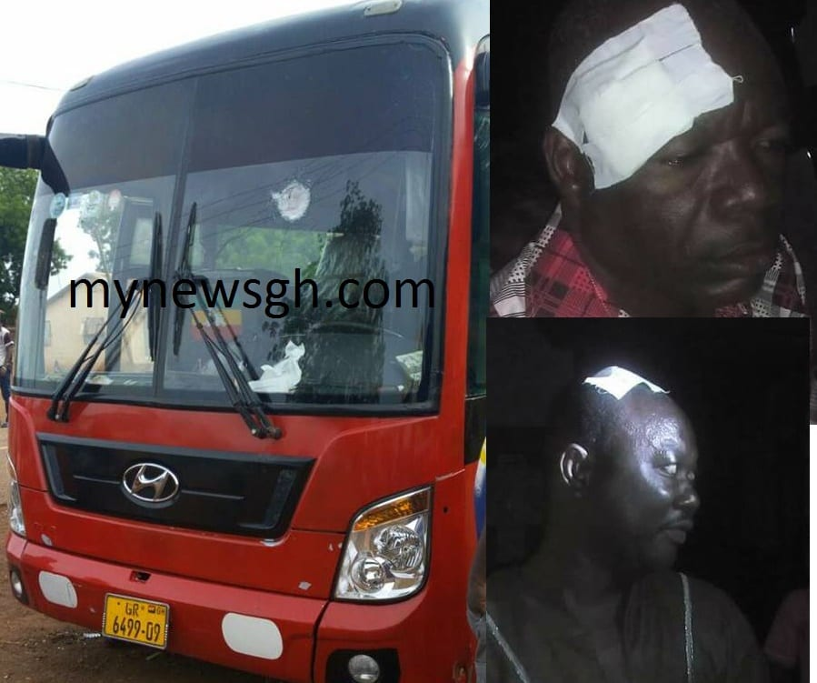 3 wounded in robbery attack at Hamile