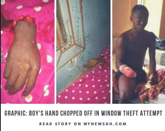 Boy 13 has his full hand chopped off as he attempts to steal phone through window