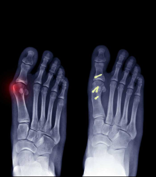 Foot & Ankle Surgery Orange CA