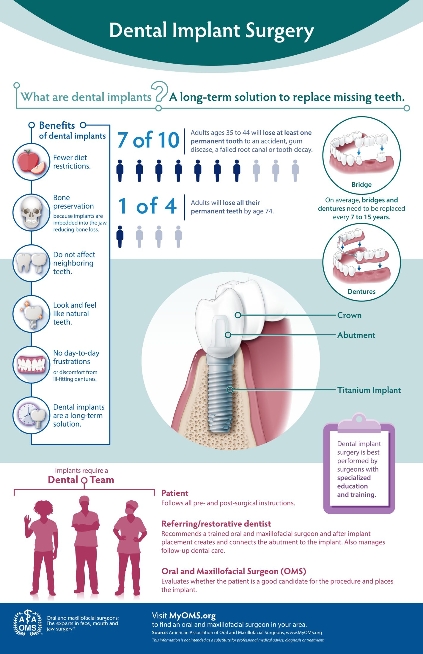 Dental Implant Surgery Infographic