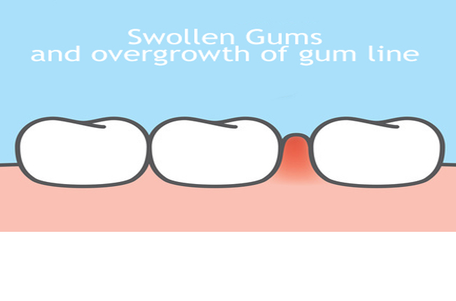 Swollen Gums and Overgrown Gum Line treatment