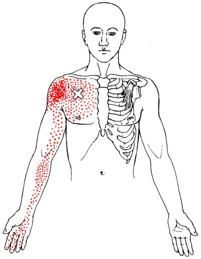 3 Stretches for a tight Pectoralis minor muscle
