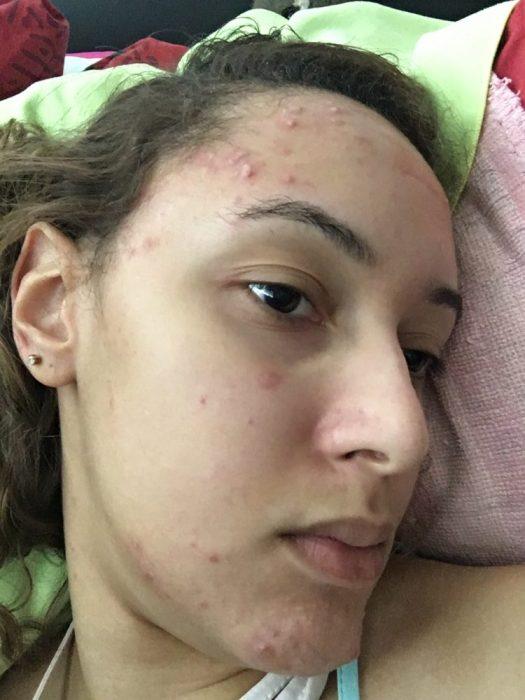acne-severe-profil