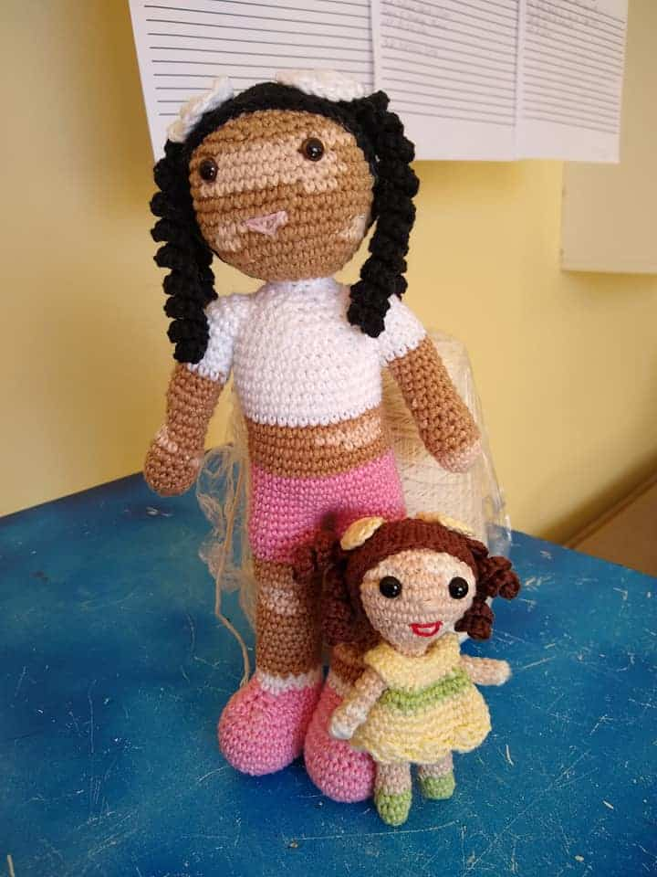 Dolls with vitiligo patches