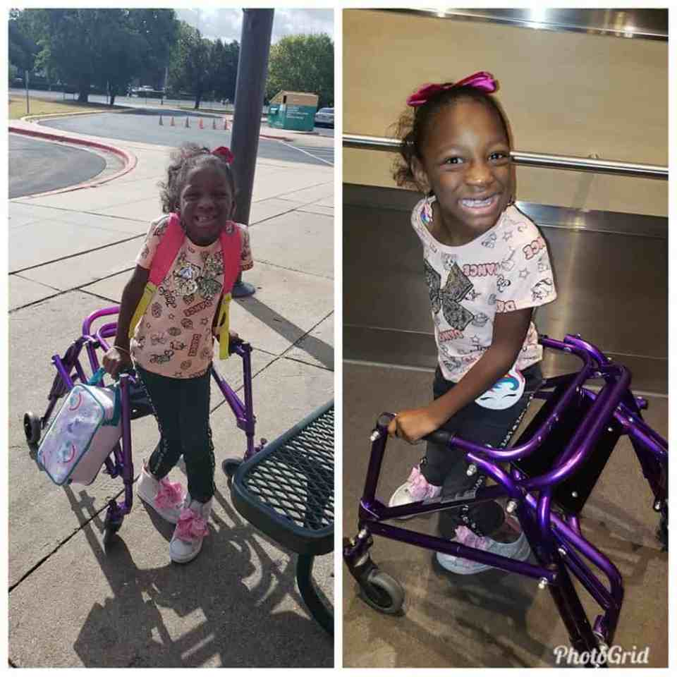 Girl with cerebral palsy uses her assistive device for walking.