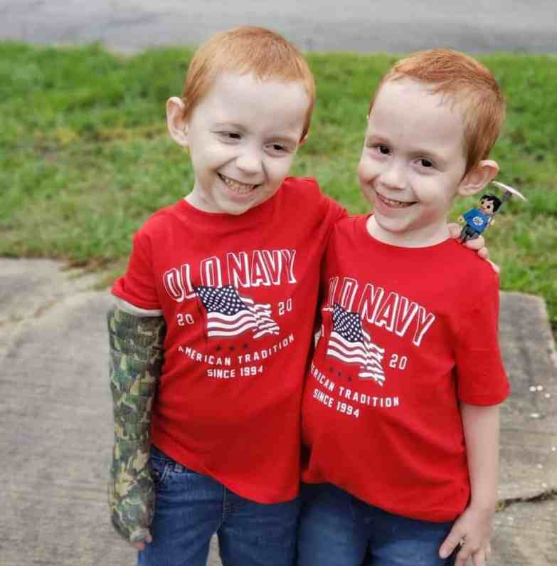 Formerly conjoined twins Carter and Conner. Wolfson Children's Hospital.