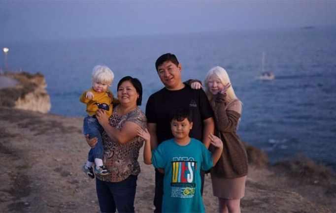 The family of albino sisters in Kazakhstan