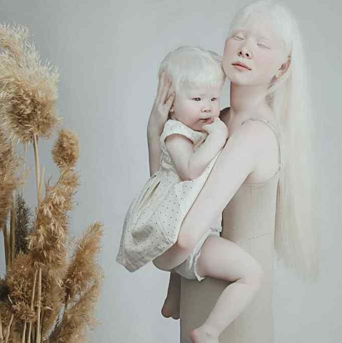Albino sisters in Kazakhstan