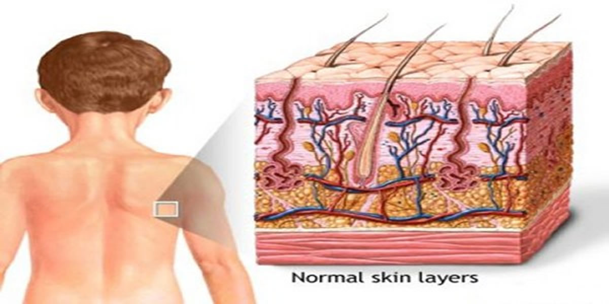Human Body : Skin -the body's largest organ
