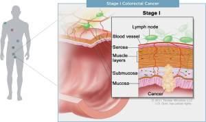 Cancer Types  MyriadMyRisk