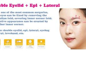 TLPS-eye-plasty