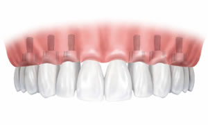 Permanent Dental Implant
