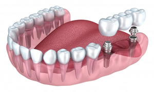 Dental Implant Multiple Teeth