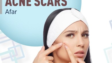 Photo of Acne Scar Treatment in Bangalore