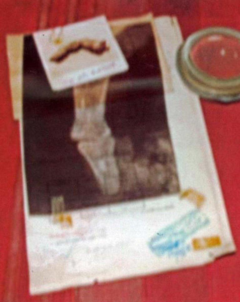 Raio-X de gigante de dedo mumificado egípcio