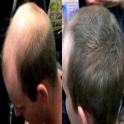 Caboki Hair Fiber Pakistan