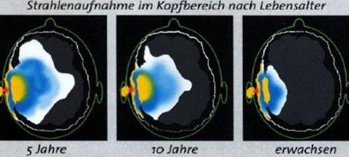 Strahlenaufnahme Kinder