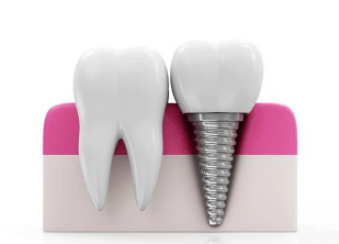 Why do you need dental implants for your missing teeth?
