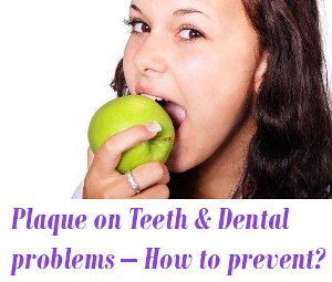 Plaque on Teeth and Dental problems