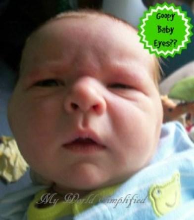 goopy-baby-eyes