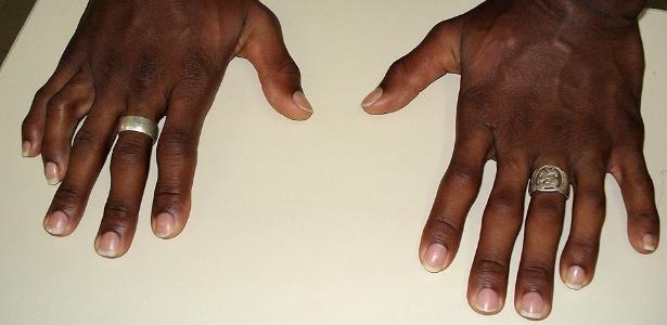 Mãos de suspeito pelo crime são fotografadas pela Polícia Civil de Santa Catarina