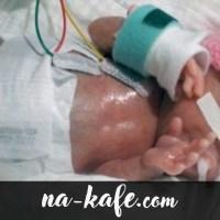 Помните ли миниатюрната Емилия, която се роди едва 226 грама и се побираше в човешка длан? Ето как изглежда днес (Снимки)