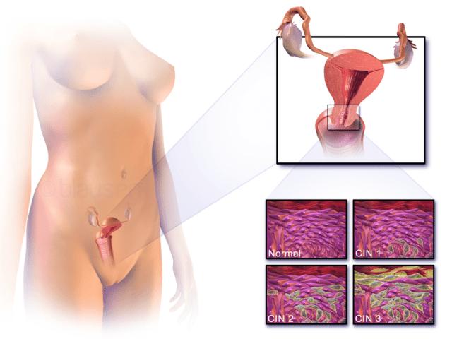 자궁경부암의 위치, 정상세포와 비정상세포의 모습. 이미지출처 : en.wikipedia.org
