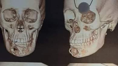 Photo of استئصال كيس من عظام الفك السفلي لفتاة بمستشفى جامعة بنها