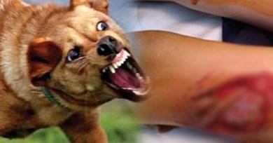 Photo of كلب مسعور يعقر 10 أطفال بقرية في بنها.. والوحدة الصحية «بلا أمصال»