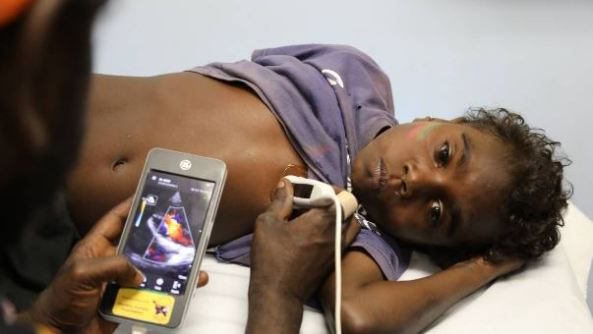 RHD patient, Trey (young Aboriginal boy) lying on examination bed receives a handheld echo scan
