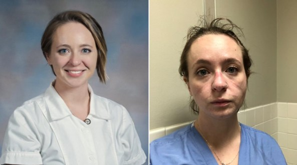 """Kathryn Ivey, an ICU nurse in the USA tweeted these two photos with the text: """"How it started. How it's going."""" in November 2020."""