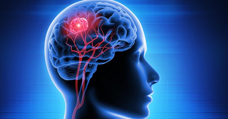 Beim Ruhen schaltet das Hirn auf Replay