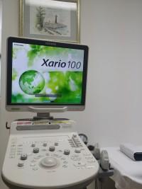超音波機器(腹部、頚部、甲状腺などオールラウンドに使用できます)