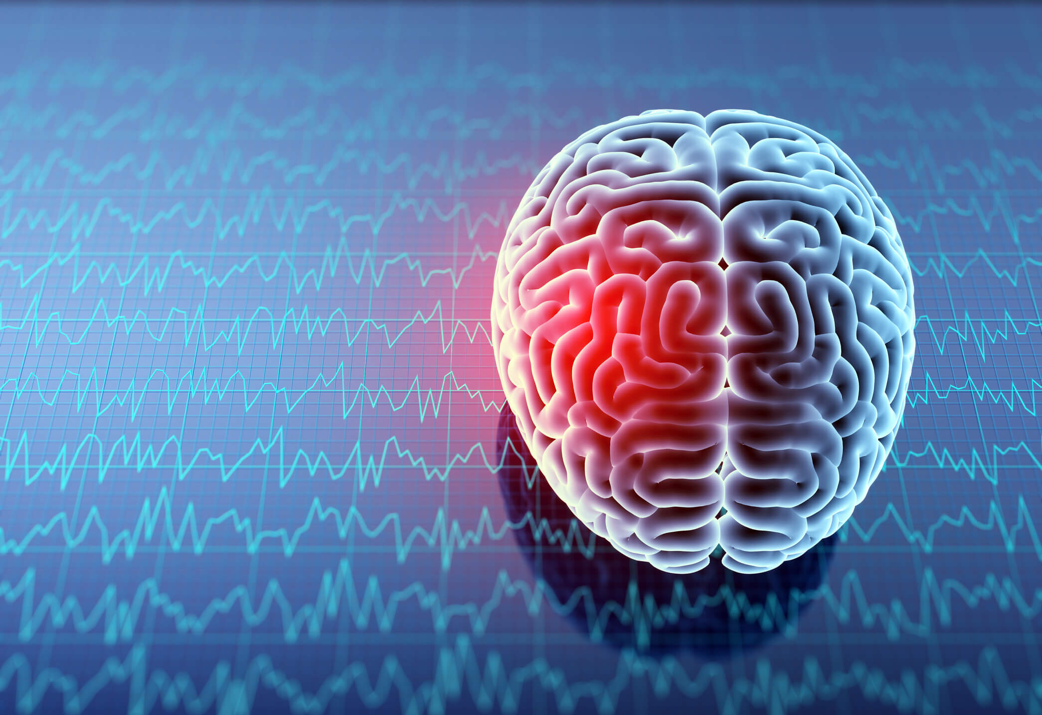 Brain injuries in teens can have long-lasting cognitive impacts