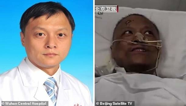 Wuhan Doctors Who Were Critically Ill With COVID-19 Wake Up To Find That Their Skin Has Turned Dark After The Virus Damaged Their Livers