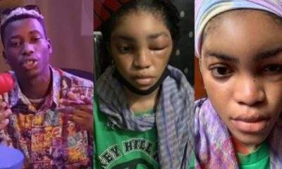 Lil Frosh Denies Beating Girlfriend, Says The Swelling On Her Face Was Due To Allergic Reaction (Video)