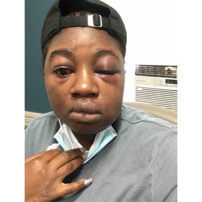 """""""Nigeria has failed me,"""" Woman kidnapped, beaten and r^ped for days narrates horrific experience"""