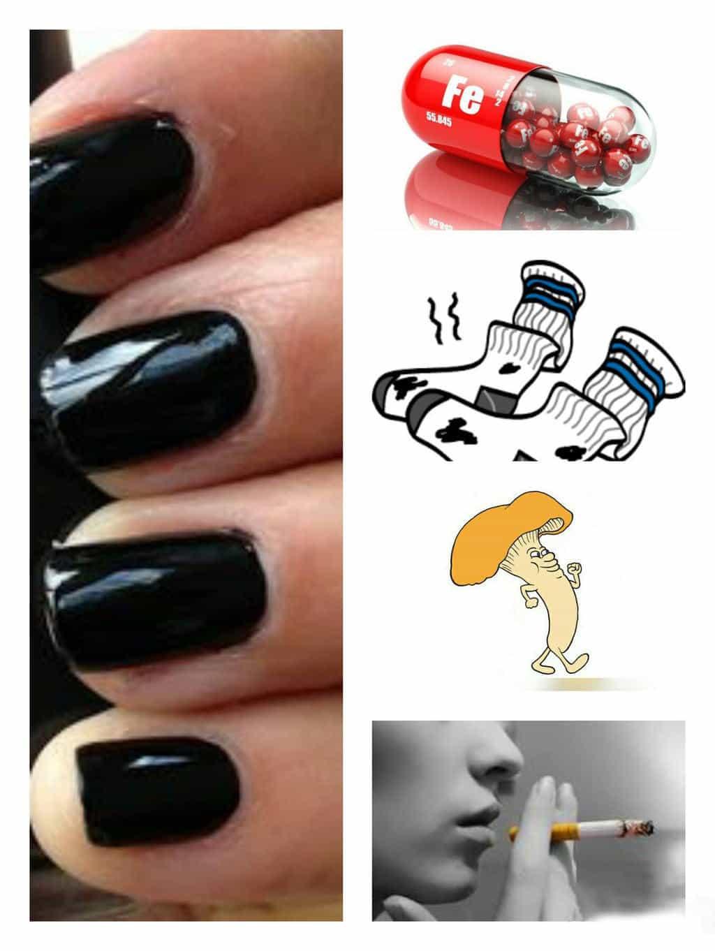 Causes Of Yellow Nail Nails