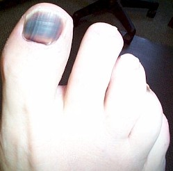 Nail Fungus From Acrylic Nails Pictures Getnailideas
