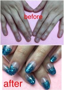 アクリルスカルプ深爪矯正施術の前と後