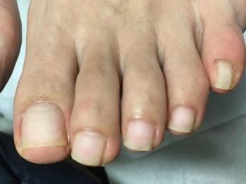 プレパレーション後左足爪