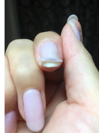 加藤の爪の剥がれたジェルネイル