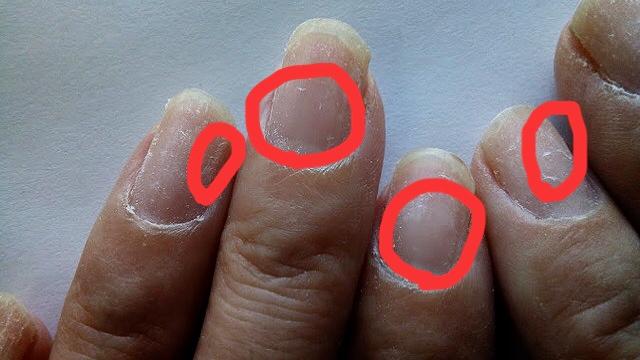 ジェルオフで爪が傷んだのではなく、ベースジェルが残っています