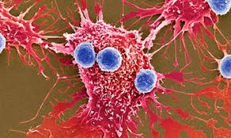 がん細胞と腸内細菌