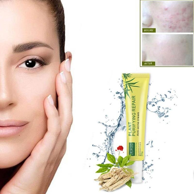 Acne Scar Removal Cream Skin Repair Face Cream Face Skin Care