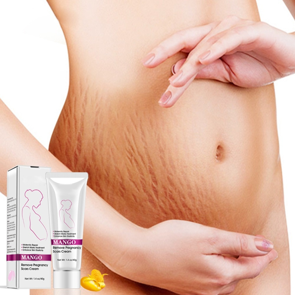 Mango Remove Pregnancy Scars Cream Stretch Marks And Scar Cream