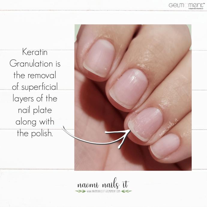 keratin granulation, nail damage, gel damage, nails, gelmoment, gel polish, naomi nails it, nails need to breathe, nail care