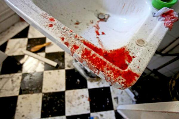 Fortechs kan bloed onderzoeken zonder de crime-scène het aan te raken