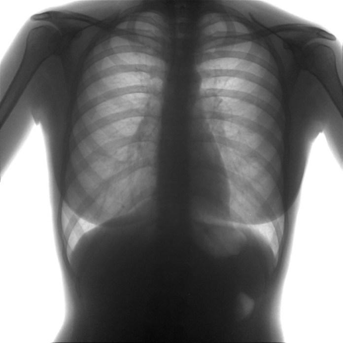 Гарантирует ли флюорограмма отсутствие туберкулеза?